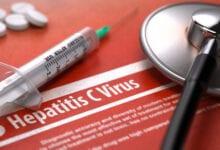 متى يظهر فيروس سي في التحاليل ؟